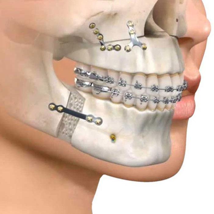 بخش تخصصی جراحی فک و صورت