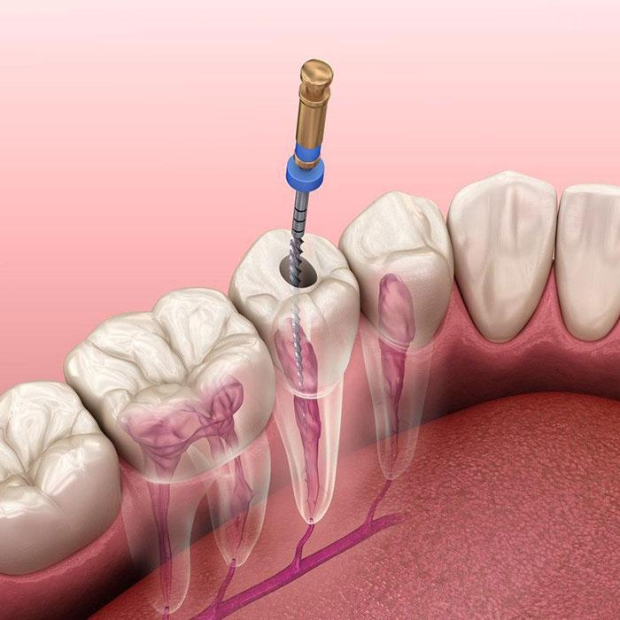بخش تخصصی درمان ریشه دندان