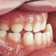 مال اکلوژن دندان چیست ؟