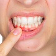 آبسه دندان چگونه به وجود می آید؟