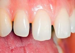 دیاستما یا فاصله بین دندانی چیست؟