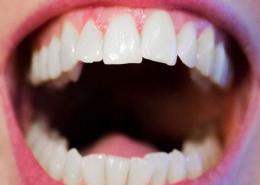 علت کج شدن دندان ها چیست؟