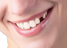 انواع روش جایگزین کردن دندان کشیده