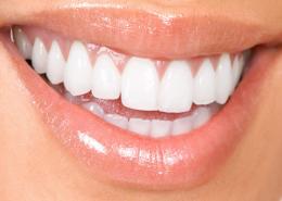 تفاوت کامپوزیت ، لمینت و تاج دندان