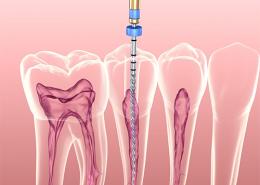 علت انجام عصب کشی دندان
