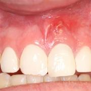 آبسه دندان، علل، علائم و درمان