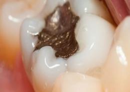 ترمیم یا فیلینگ دندان