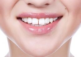 فاصله بین دندان ها یا دیاستما
